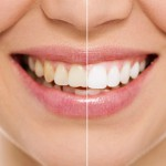 Teeth Whitening at Smile Place Dental