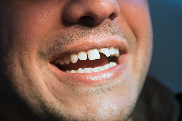 Dental Chips, Scratches Repair at Smile Place Dental