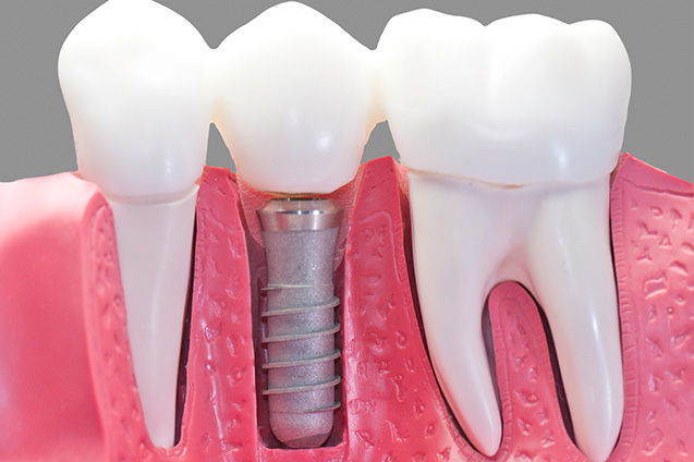 Crowns Bridges Implants at Smile Place Dental