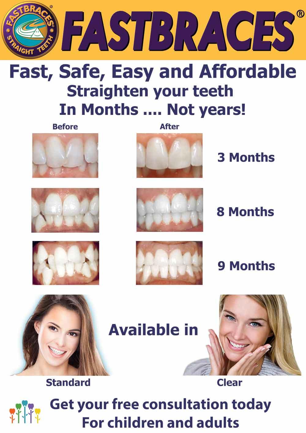 Fastbraces - Straighten Teeth in 120 Days - Smile Place Dental