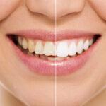 Teeth Whitening at Smile Place Dental