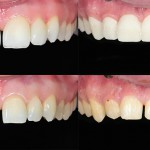 Veneers at Smile Place Dental