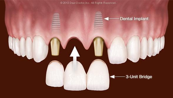 how to clean dental bridge